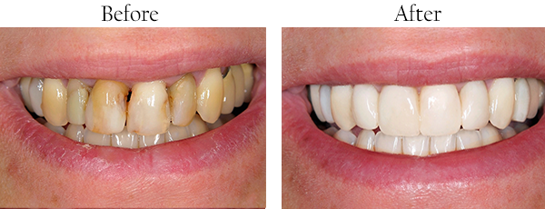 Teeth Correction Joliet